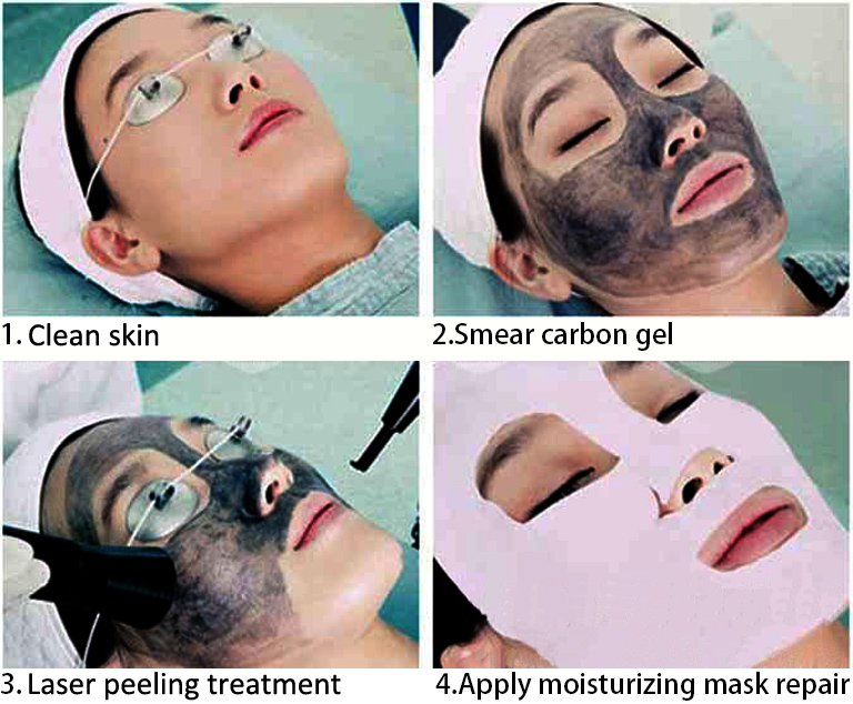 Black Doll Laser Peel Treatment